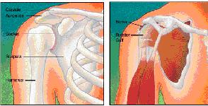 dor-no-ombro-sindrome-do-impacto-horizontal - 01